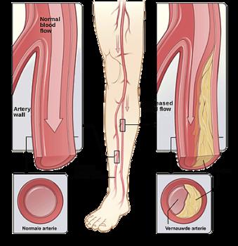 symptomen claudicatio intermittens