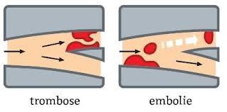 embolie betekenis